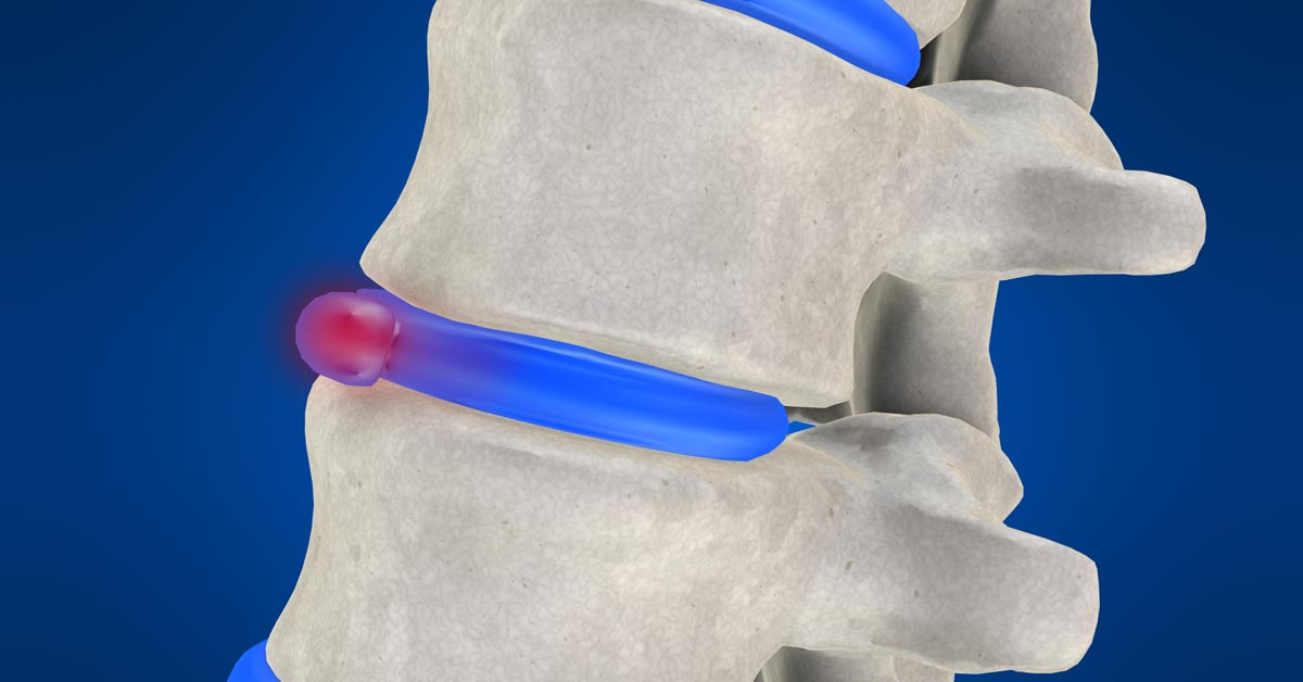 Woburn & Chelmsford, MA non-surgical disc herniation treatment
