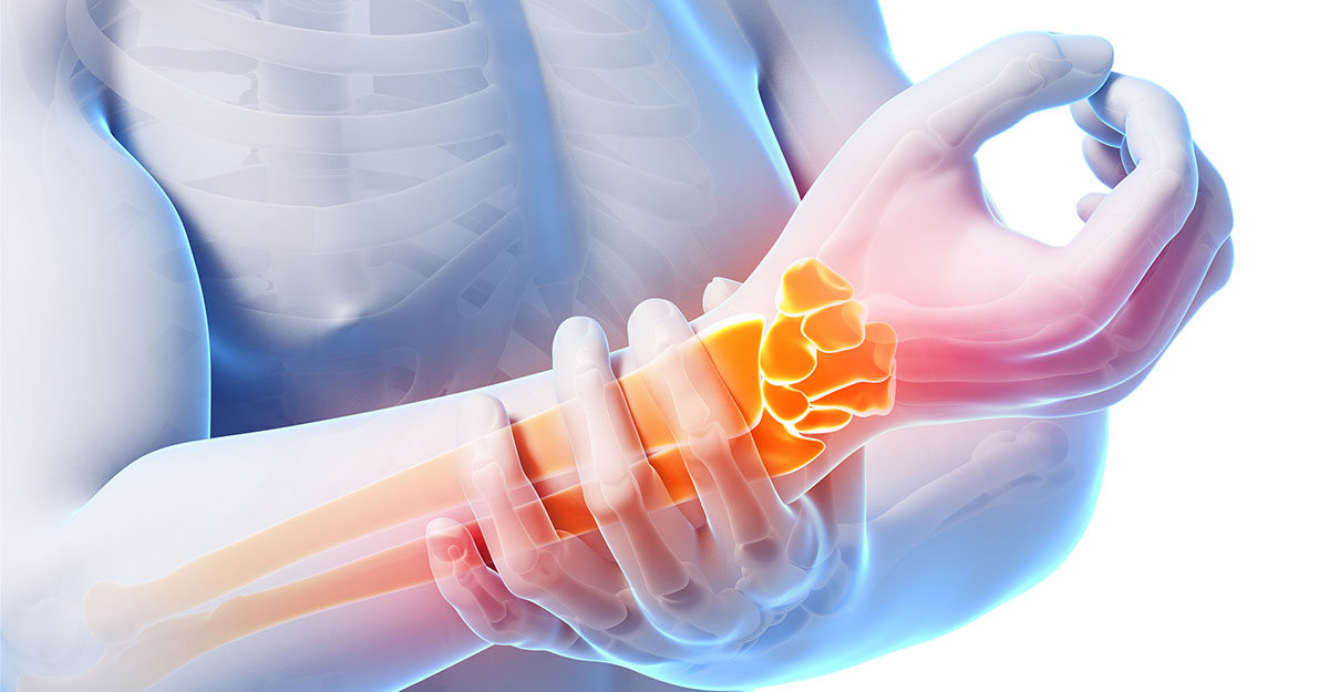 Woburn & Chelmsford, MA natural carpal tunnel treatment